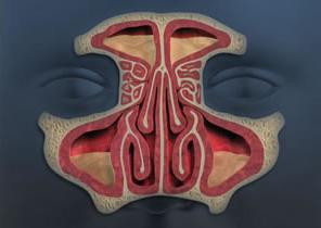 Diseased Sinuses