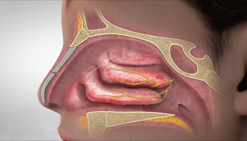 Nasal-Nerves
